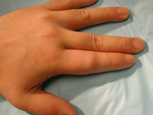 Enflamed fingers due to Psoriatic Arthritis.