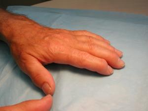 Swollen hand from patient with Psoriatic Arthritis.