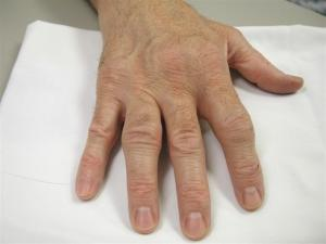 Hand with enlarged joints due to Rheumatoid Arthritis