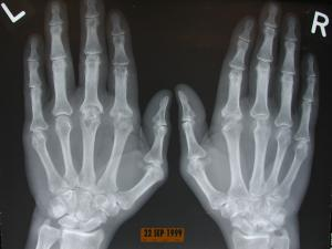 X-ray image of hand with Rheumatoid Arthritis