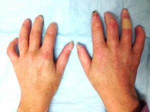 Scleroderma hand