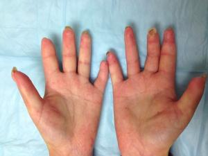 Hand of patient with scleroderma.